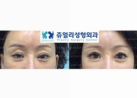 쌍꺼풀 재수술-안검하수 교정