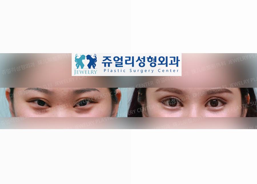 안검하수+뒤트임+눈꼬리(밑트임)
