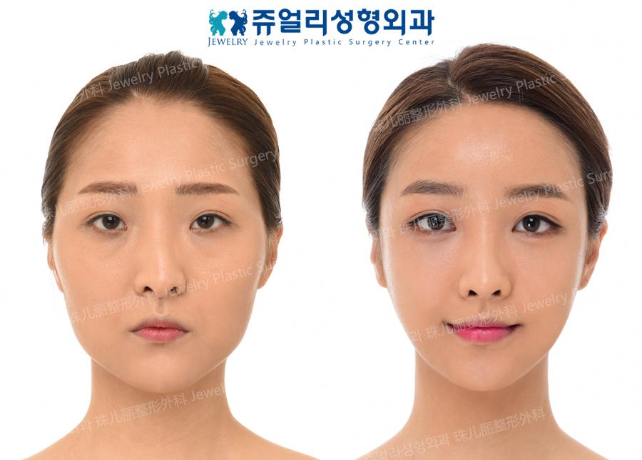 눈성형,눈밑지방재배치,화살코교정,큐브지방이식,안면윤곽수술