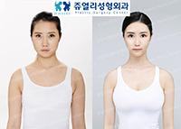 팔,부유방 지방흡입+얼굴성형+가슴확대