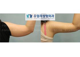 팔 지방흡입