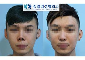 코 재수술(구축)-늑연골