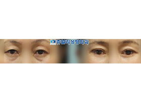 Upper/Lower Blepharoplasty