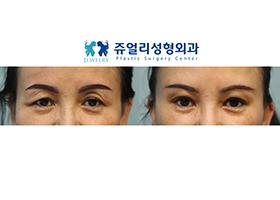 눈썹거상+눈두덩이 지방이식