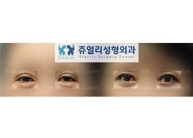 쌍꺼풀 재수술+하안검+애교