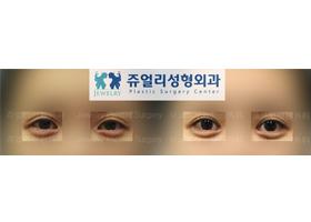 쌍꺼풀 재수술+뒤트임+눈꼬리
