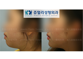 턱끝 전진술