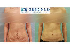 복벽성형술+지방흡입