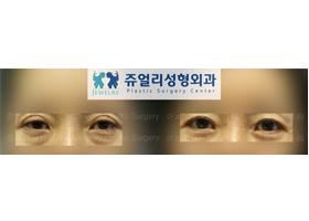 상안검+하안검