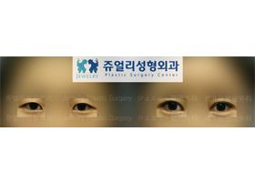 쌍꺼풀-매몰법+앞트임