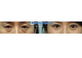 상/하안검