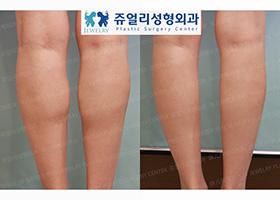 종아리 고주파(신경차단술)