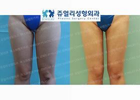 허벅지 지방흡입