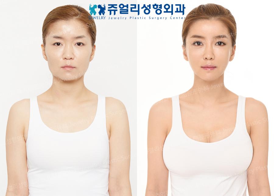 얼굴성형,가슴성형