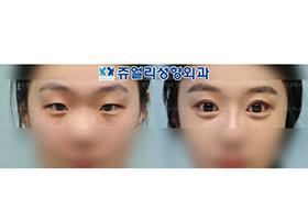 눈성형-절개+앞트임+뒷트임+눈밑지방재배치+애교
