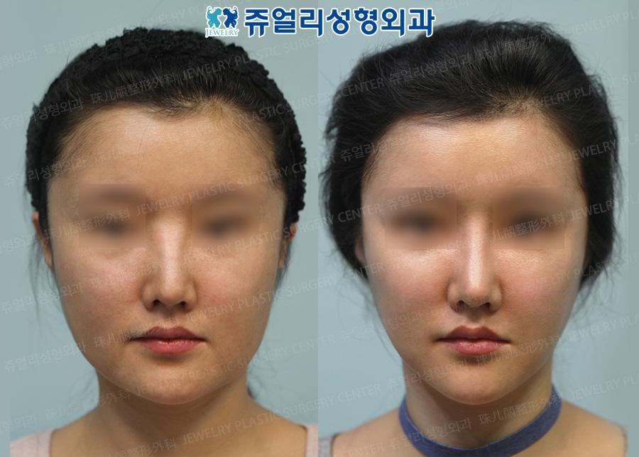 코 재수술+지방이식+볼 지방흡입+ 턱선리프트