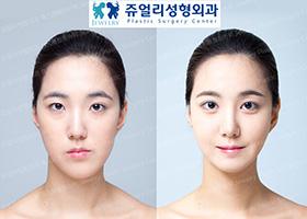 눈성형(절개법),코성형,지방이식,안면윤곽