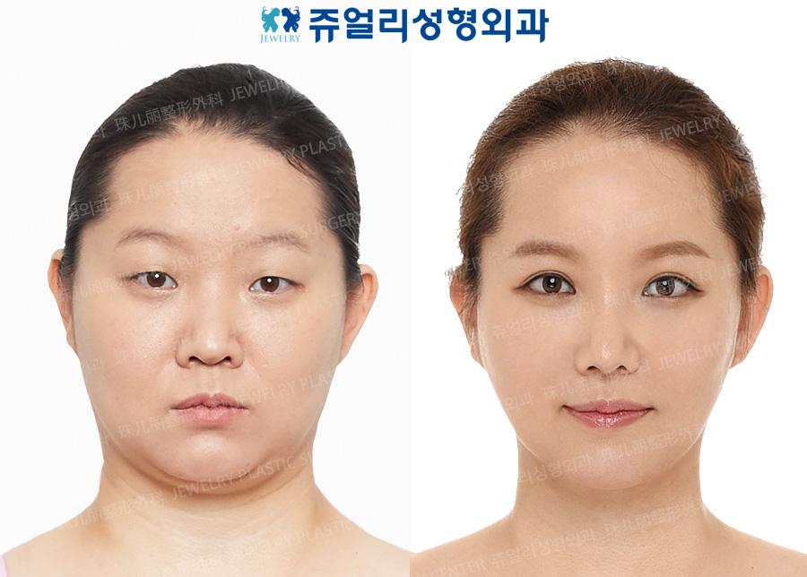 눈성형+코성형+큐브지방이식+밀당주사+이중턱/볼 지방흡입