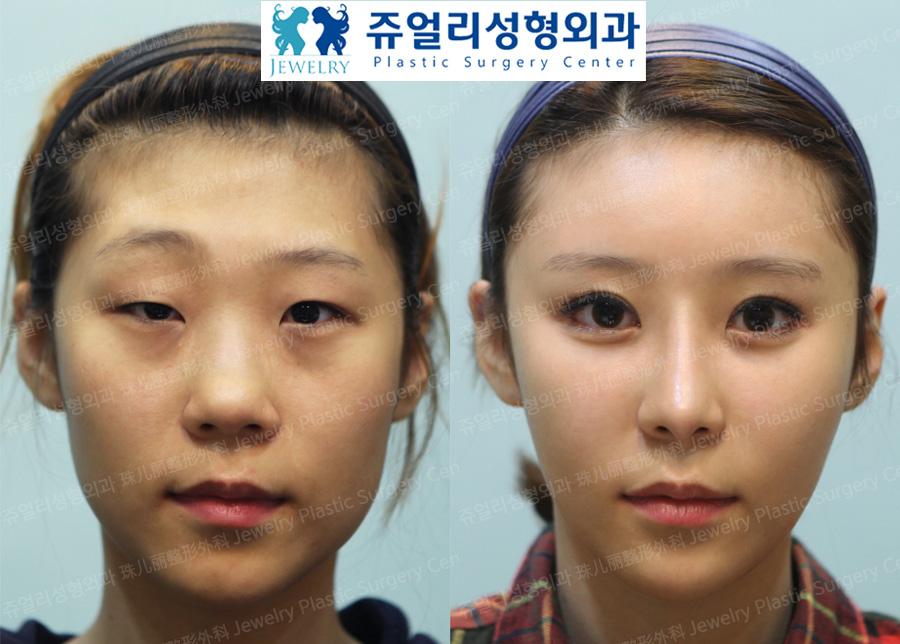토탈이미지성형 : 눈성형 / 코성형 / 페이스지방이식 / 사각턱보톡스