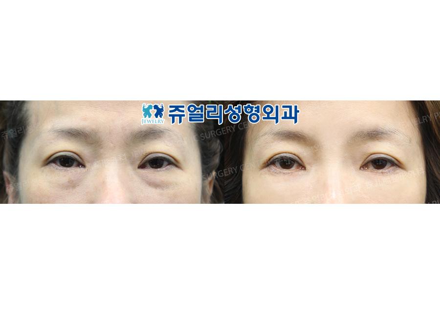 눈밑지방재배치+미간보톡스