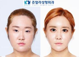 눈성형+코성형+지방이식+광대축소술+사각턱축소술+이중턱 지방흡입+턱보톡스