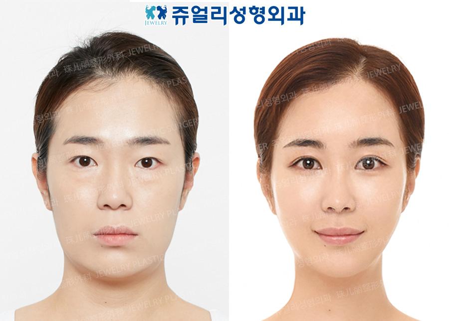 눈 재수술+윗트임+밑트임+눈밑지방재배치+메부리코성형+지방이식+앞턱보형물+볼,턱 지방흡입