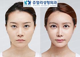 안면윤곽, 눈, 코, 지방이식